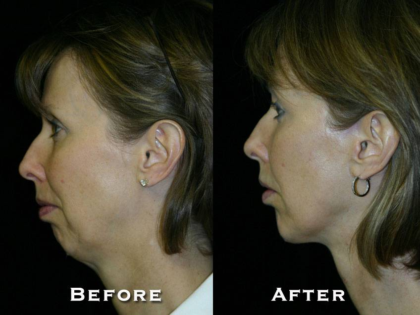 006_gowda_facelift_patient2_3