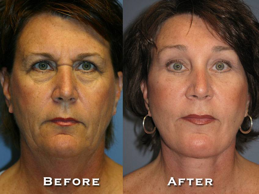 007_gowda_facelift_patient3_1