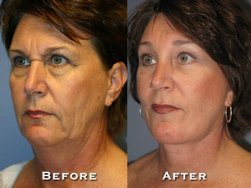 008_gowda_facelift_patient3_2