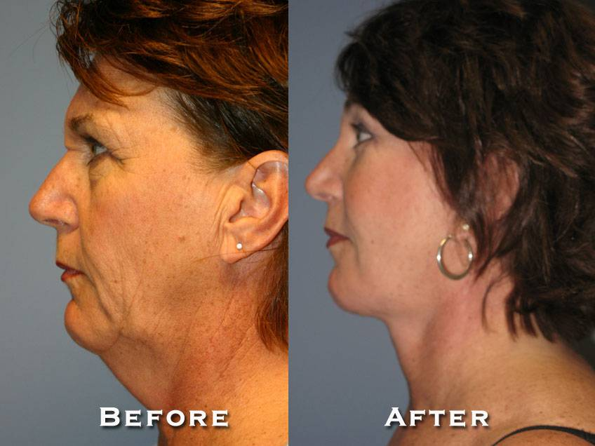 009_gowda_facelift_patient3_3
