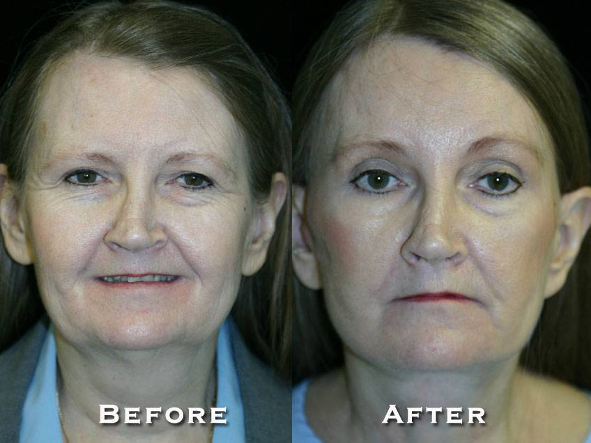 019_gowda_facelift_patient7_1