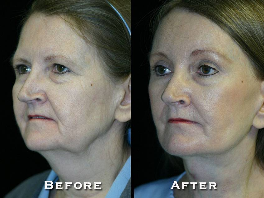 020_gowda_facelift_patient7_2