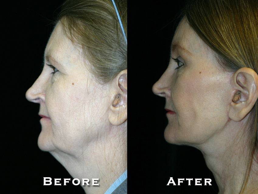 021_gowda_facelift_patient7_3