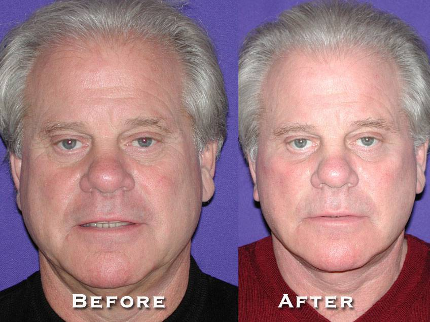 022_gowda_facelift_patient8_1