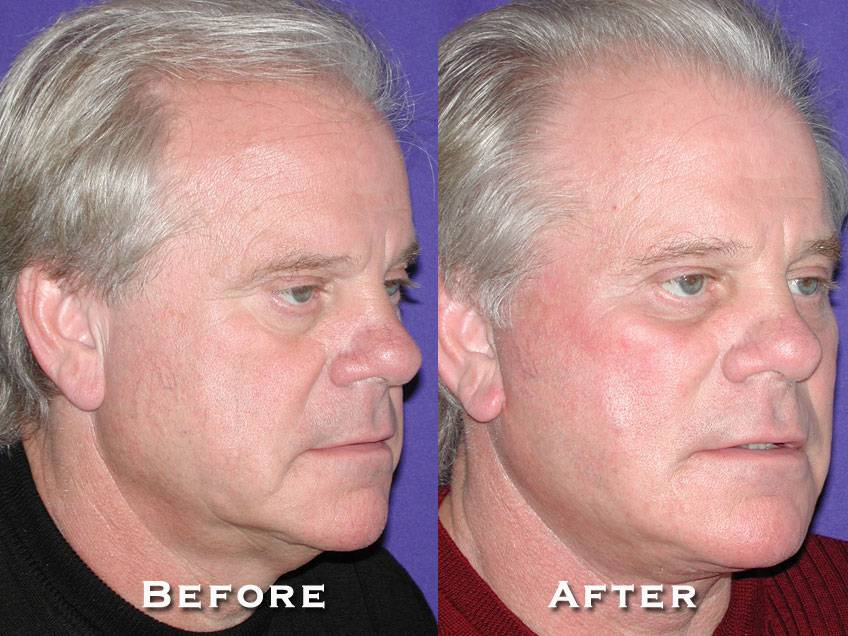 023_gowda_facelift_patient8_2