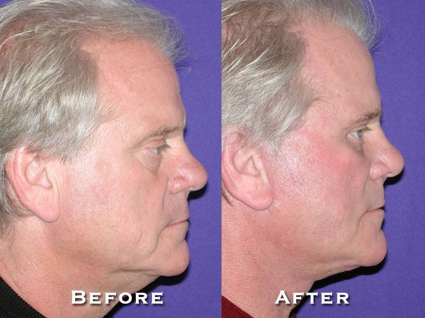 024_gowda_facelift_patient8_3