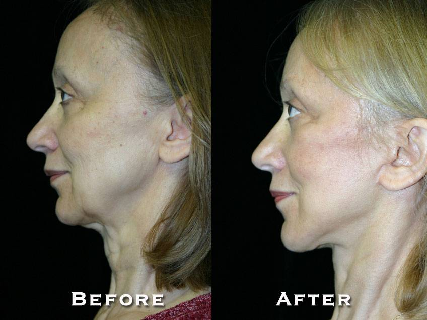 027_gowda_facelift_patient9_3
