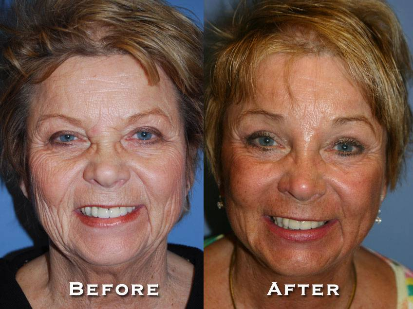 031_gowda_facelift_patient11_1