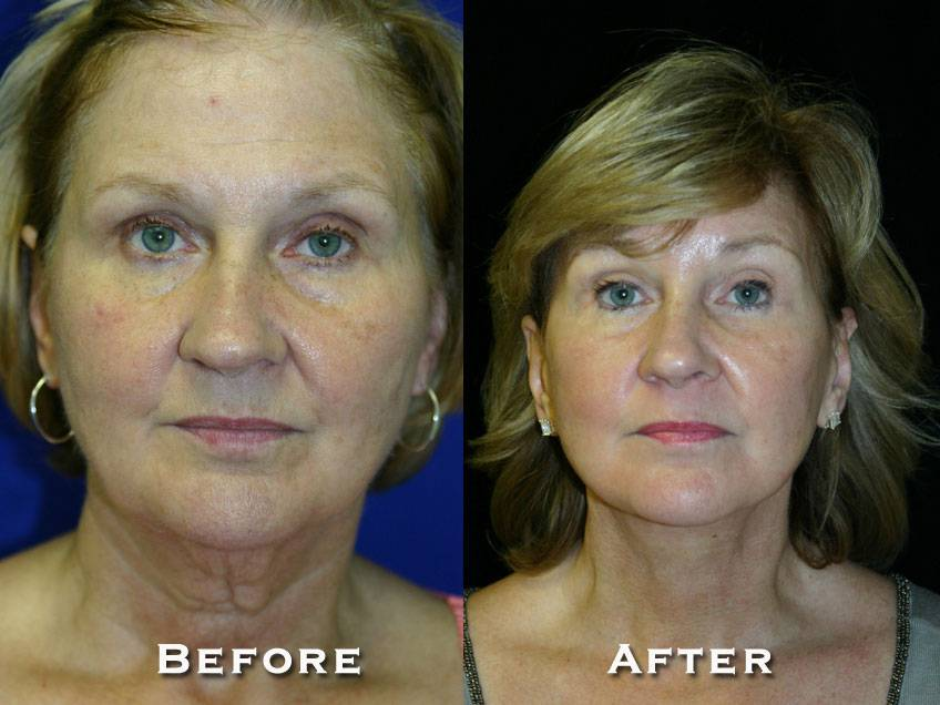 034_gowda_facelift_patient12_1