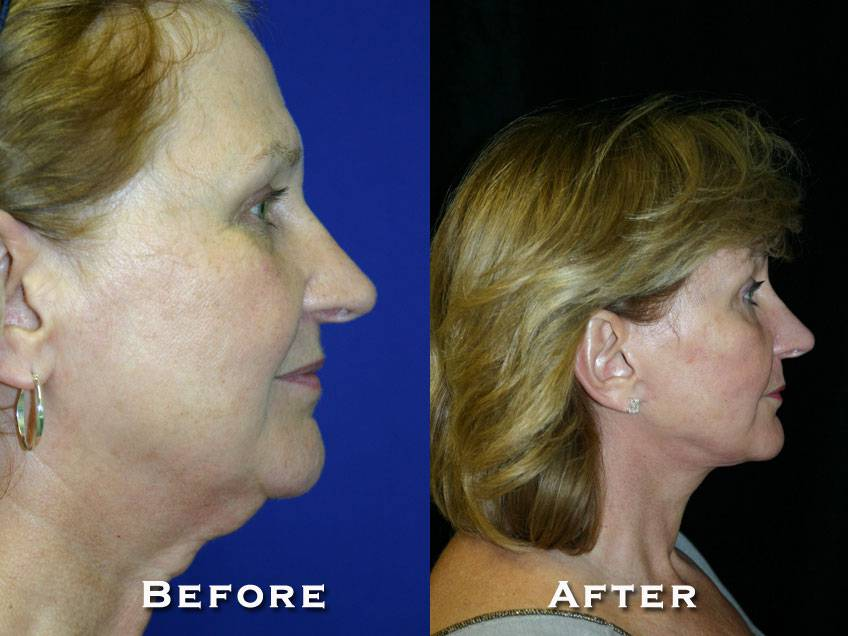036_gowda_facelift_patient12_3