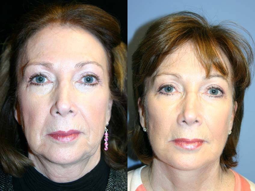 037_gowda_facelift_patient13_1
