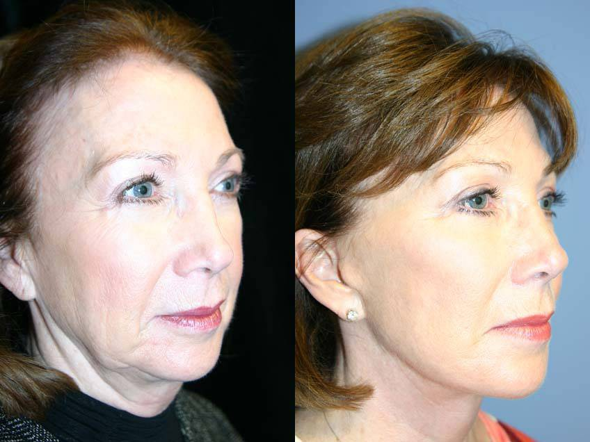 038_gowda_facelift_patient13_2