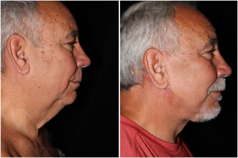 040_dm-gowda-neck-facelift-p10-1