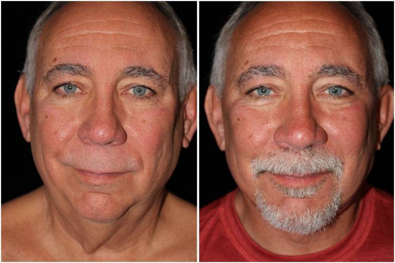 041_dm-gowda-neck-facelift-p10-2