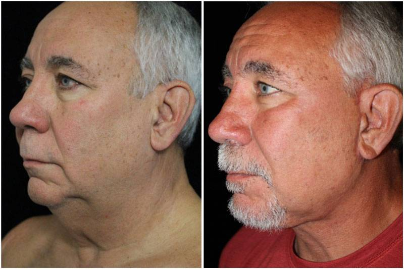 042_dm-gowda-neck-facelift-p10-3