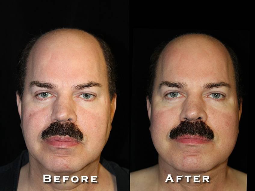 Facelift Patient 10