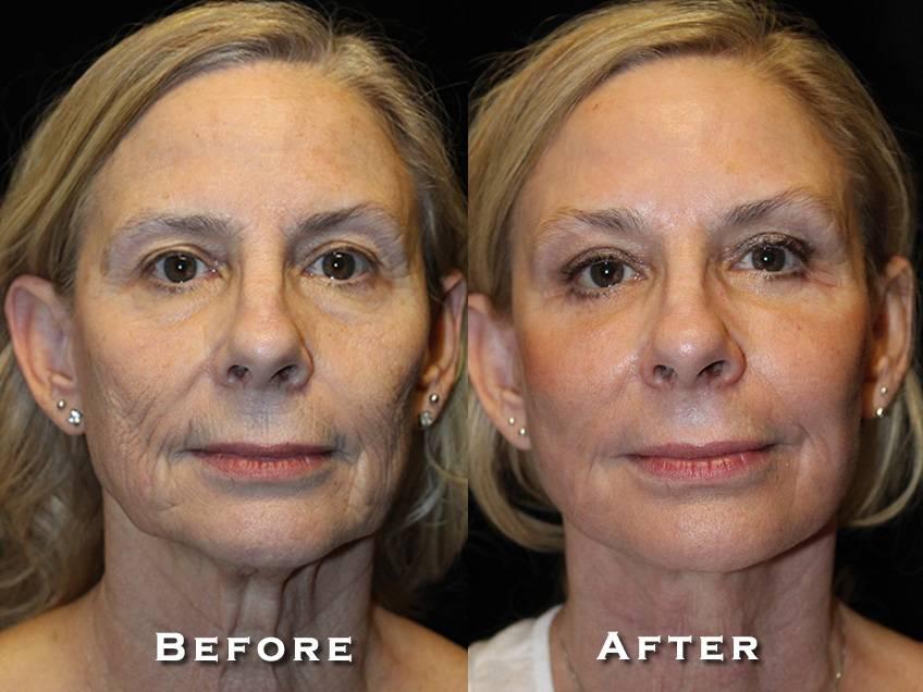 Facelift Patient 11