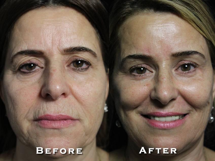 Facelift Patient 12