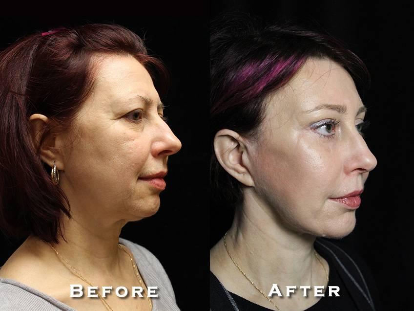 Facelift Patient 2