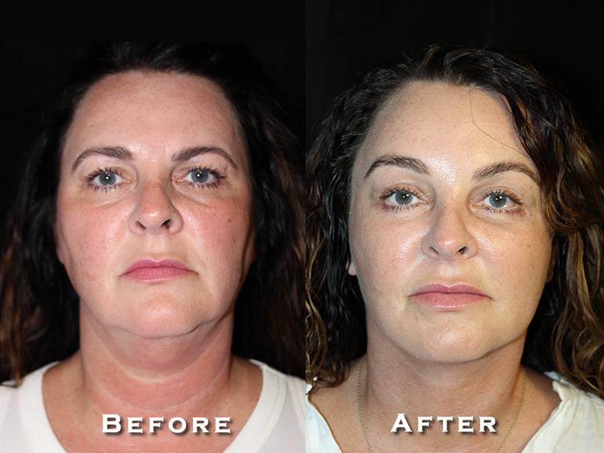Facelift Patient 5