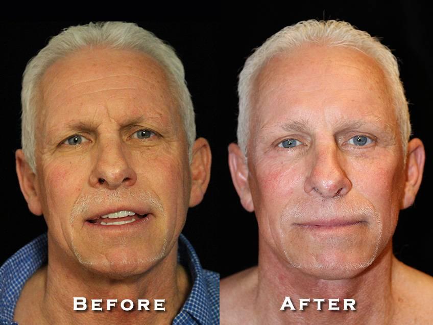 Facelift Patient 7