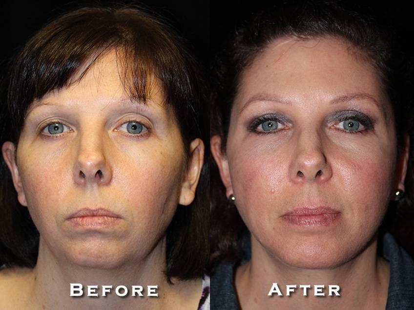 Facelift Patient 8