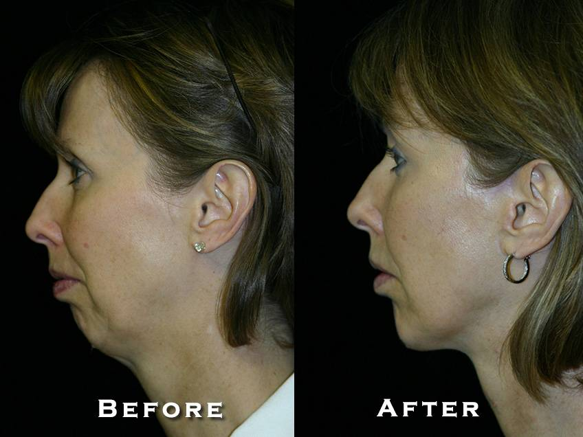Facelift Patient 9