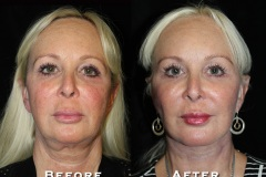 Facelift Patient 1