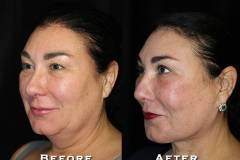 Facelift Patient 4