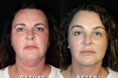 Facelift Patient 5