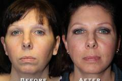 Facelift Patient 8