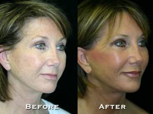 thumbs_gowda_facelift_patient1_2