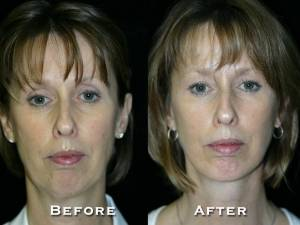 thumbs_gowda_facelift_patient2_1