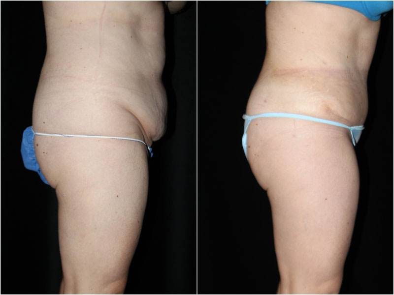 001_abdominoplasty-liposuction1-1