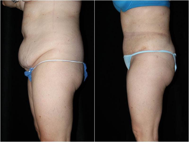 003_abdominoplasty-liposuction1-3