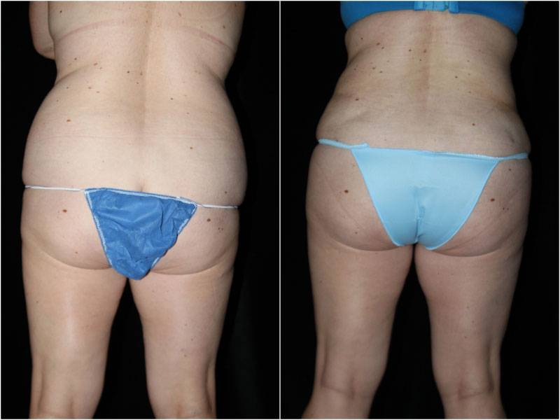 004_abdominoplasty-liposuction1-4