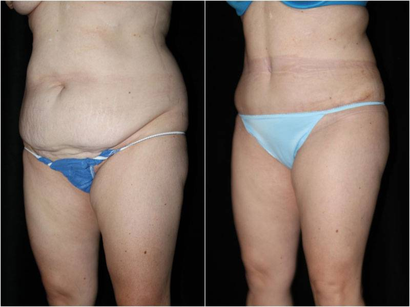 005_abdominoplasty-liposuction1-5