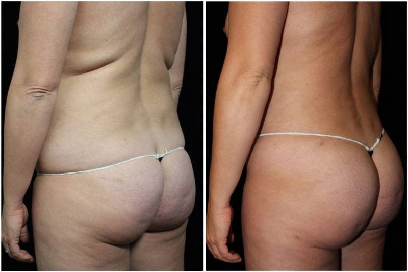 006_hm-gowda-liposuction-fat-graft-buttocks-p-10-1