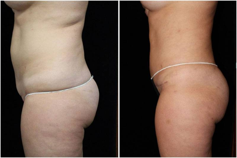 007_hm-gowda-liposuction-fat-graft-buttocks-p-10-2
