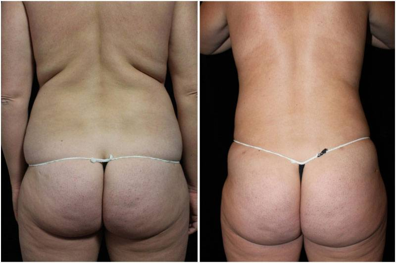 008_hm-gowda-liposuction-fat-graft-buttocks-p-10-3