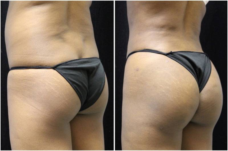 009_jn-gowda-liposuction-fat-graft-buttocks-p-11-1