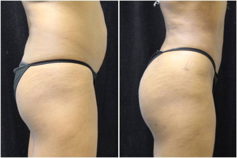 011_jn-gowda-liposuction-fat-graft-buttocks-p-11-3