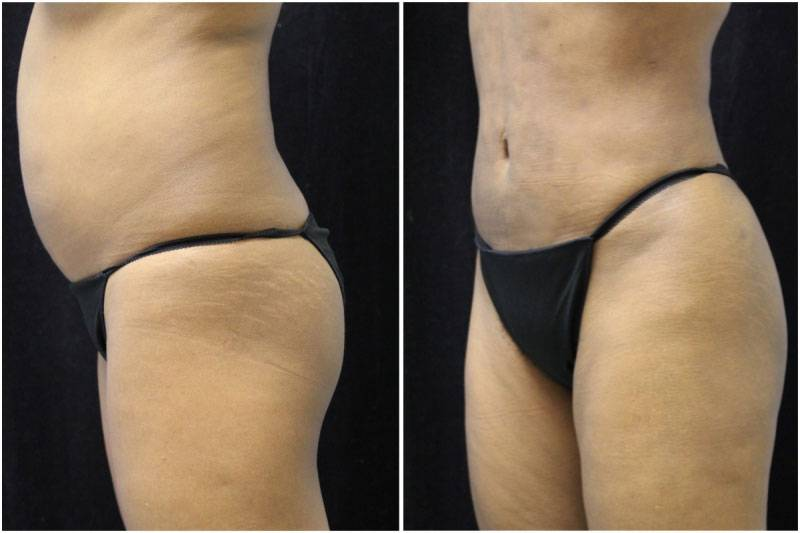 012_jn-gowda-liposuction-fat-graft-buttocks-p-11-4