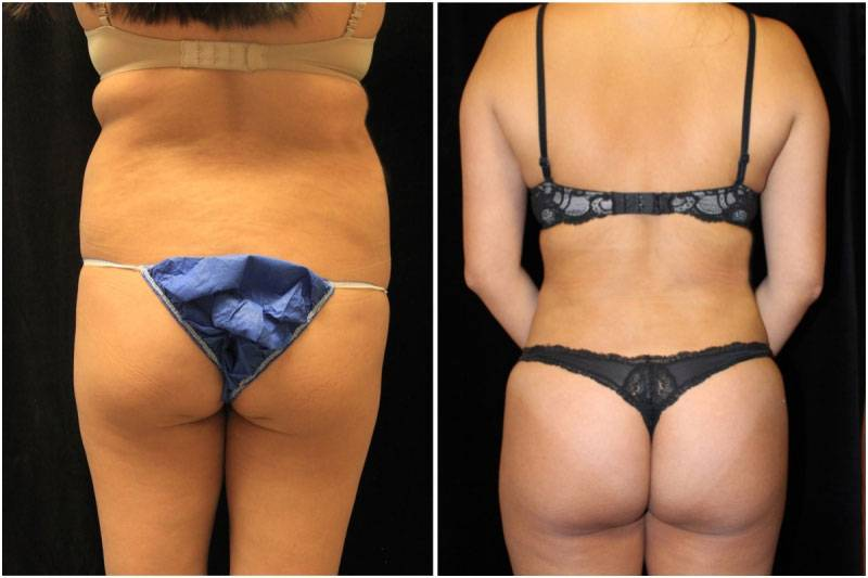 013_js-gowda-liposuction-fat-graft-buttocks-p-12-1