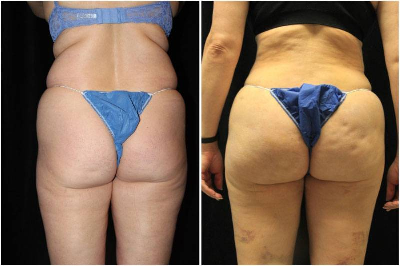 015_km-gowda-liposuction-fat-graft-buttocks-p-13-1