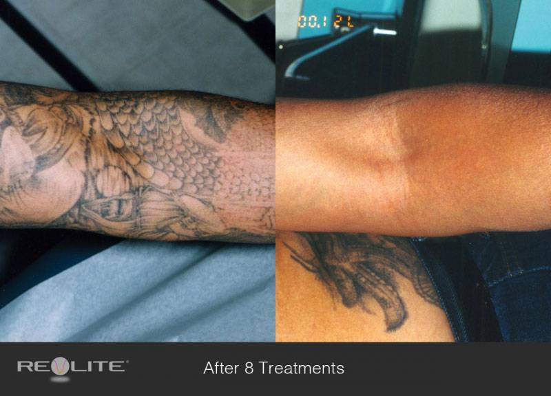 001_12135720-laser-tattoo-removal-before-and-after-8-treatments