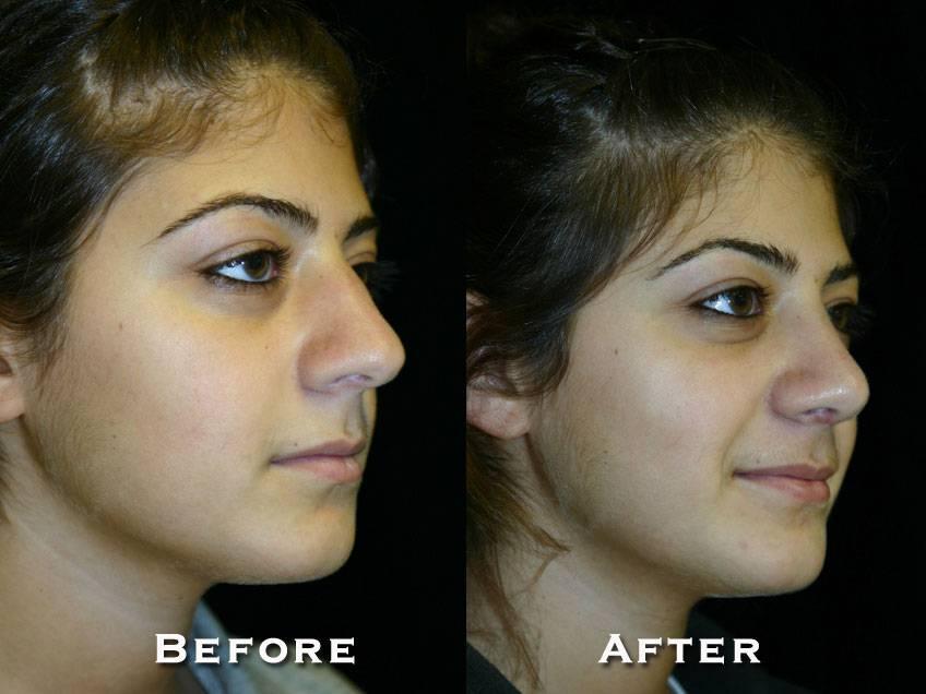 005_gowda_nose_patient1_2