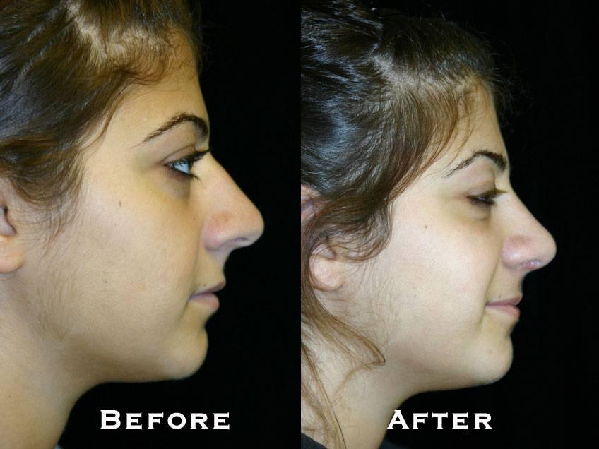 006_gowda_nose_patient1_3