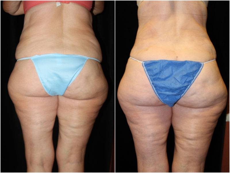 001_abdominoplasty-liposuction1-4-1
