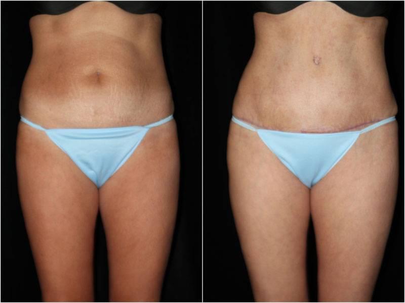 002_abdominoplasty-liposuction1-1-2
